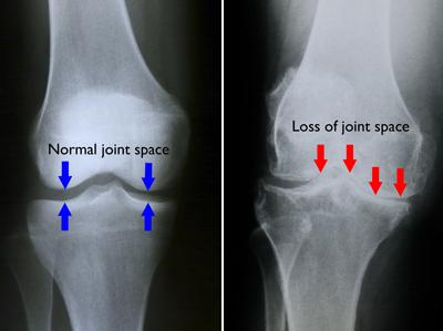 Arthritis_Doc_Exam