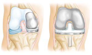 Arthritis_Treatment
