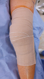 KneeArthroscopy_img6