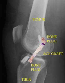 SurgicalProcedure_Img2