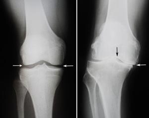 Total Knee_Orthopaedic