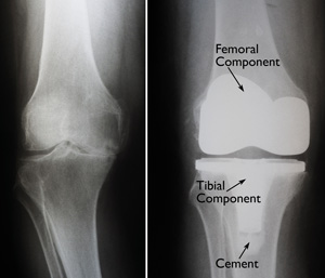 Total Knee_surgery_Img2