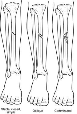 fractures-broken-bones-img1