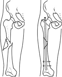 Leg with femur fracture Referenced from: Basic anatomical knowledge from WWW: http://www.anatomyatlases.org/firstaid/images/spiralfracture2.jpg