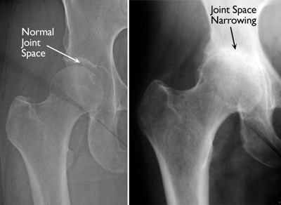 what does arthritis pain in the hip feel like