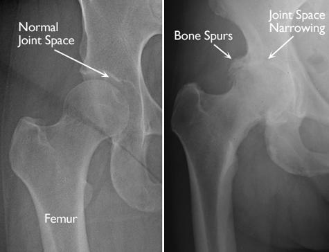 Osteoarthritis Of The Hip Duke Ahn M D
