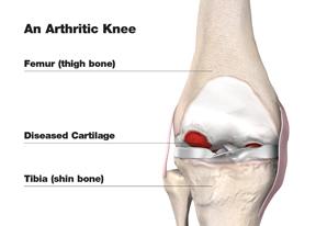total_knee_arthritic_w
